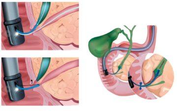 Эндоскопическая папиллосфинктеротомия (ЭПСТ)